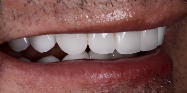 The after of the close-up smile of patient thirteen
