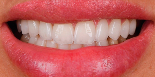 The after of the close-up smile of patient sixteen