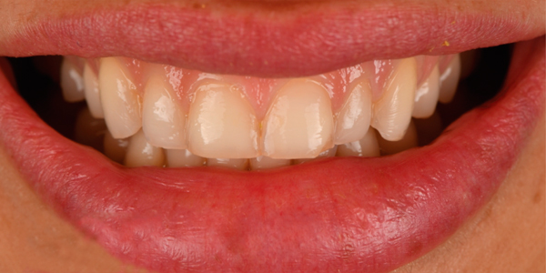 The before of the close-up smile of patient sixteen