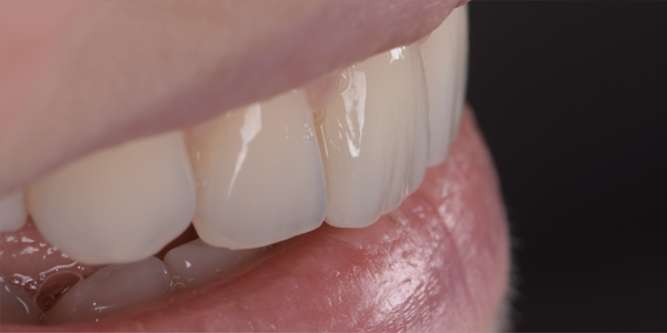 The after of the close-up smile of patient eighteen
