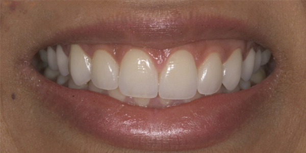 The after of the close-up smile of patient three