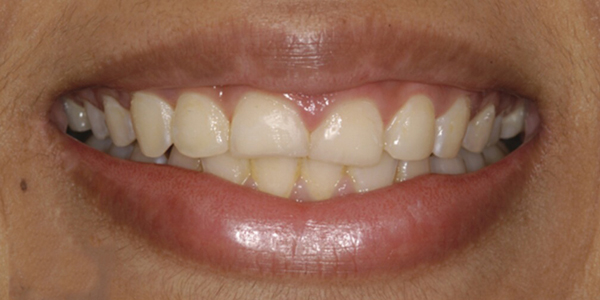 The before of the close-up smile of patient three