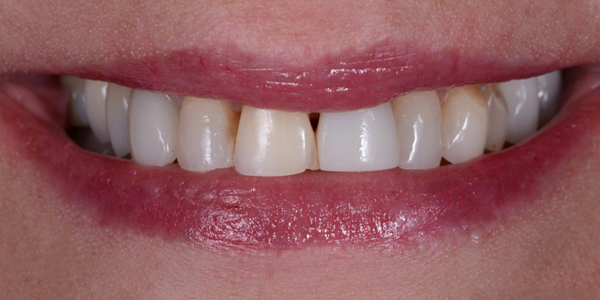 The before of the close-up smile of patient nine