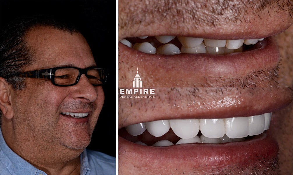 Joe's before and after smile