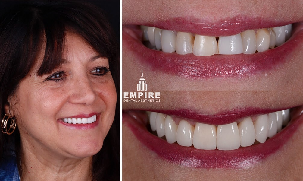 Josephine's before and after smile