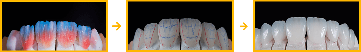 The process of a denture