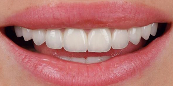 The after of the close-up smile of patient 20