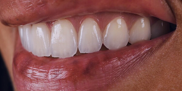 The after of the close-up smile of patient 21