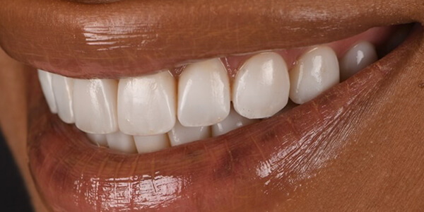 The before of the close-up smile of patient 21