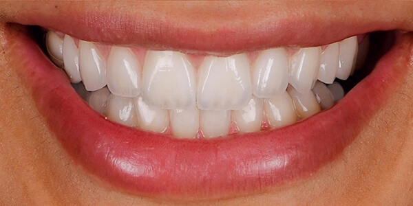 The after of the close-up smile of patient 22