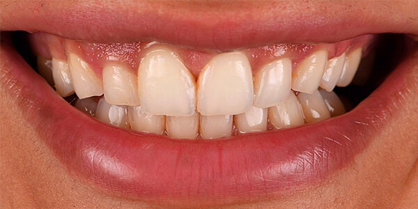 The before of the close-up smile of patient 22