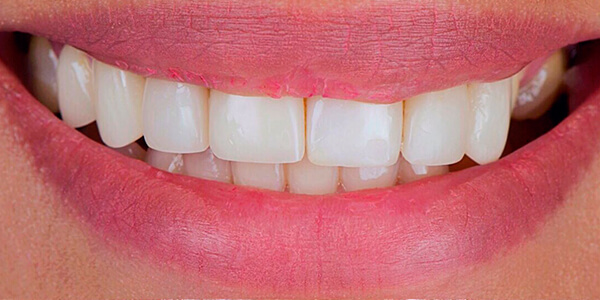 The before of the close-up smile of patient 23