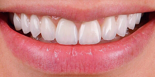 The after of the close-up smile of patient 24