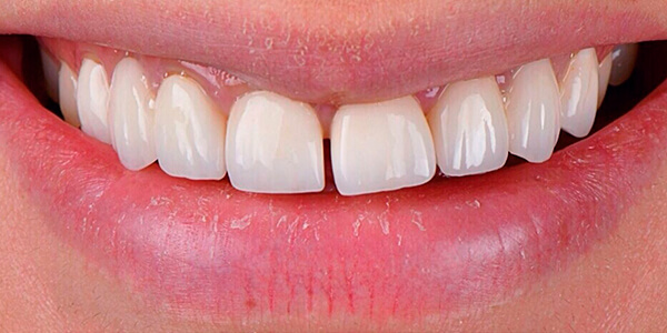 The before of the close-up smile of patient 24
