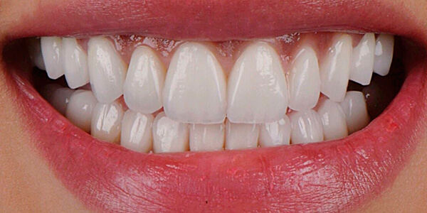 The after of the close-up smile of patient 25