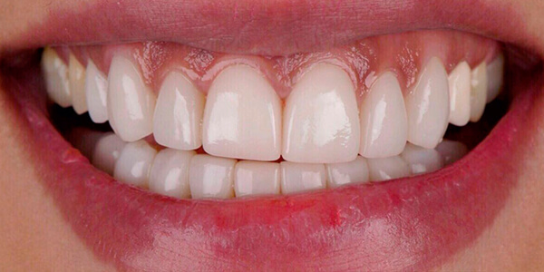 The before of the close-up smile of patient 25