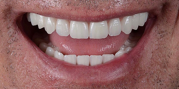 The after of the close-up smile of patient 26