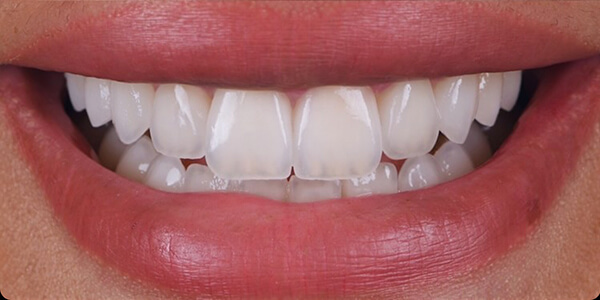 The after of the close-up smile of patient 27