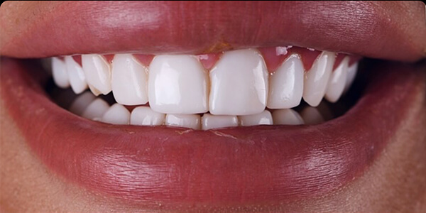 The before of the close-up smile of patient 27