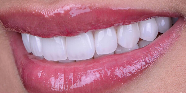 The after of the close-up smile of patient 28